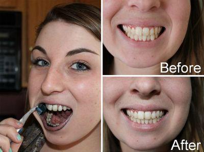 результат з фото після обробки зубів вугіллям