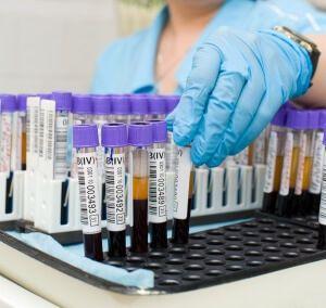 Причини зниження рівня амілази в крові