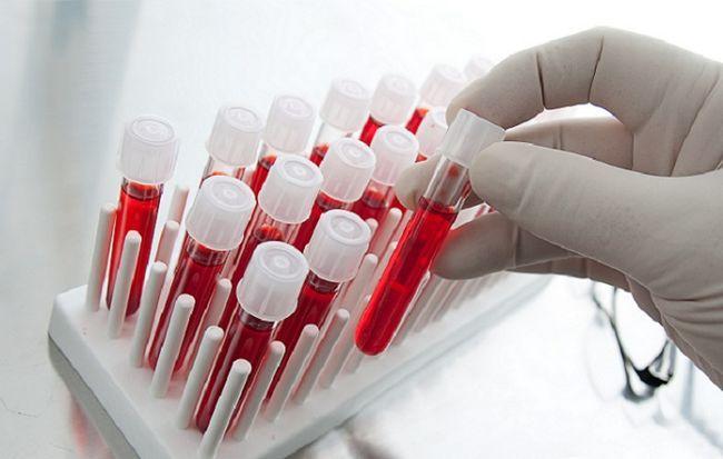 Аналіз крові на аскариди і профілактика захворювання