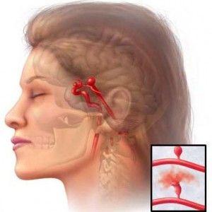 Аневризма судин мозку: причини, ознаки, наслідки, операція