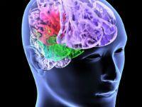 Ангіодистонія судин головного мозку