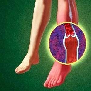 Ангіопатія при діабеті: ніг і інших органів - ознаки, як лікувати