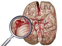 Основні симптоми аневризми головного мозку