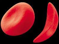 Анізоцитоз еритроцитів в аналізі крові (індекс rdw)