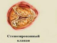 Аортальний клапан серця і його захворювання