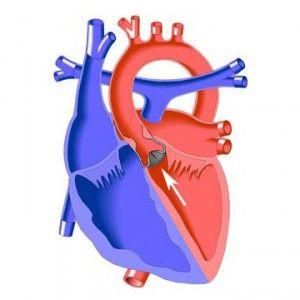 Аортальнийстеноз / порок: причини, ознаки, операція, прогноз