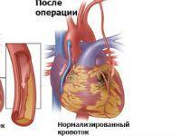 Аортокоронарне шунтування: чи варто робити?