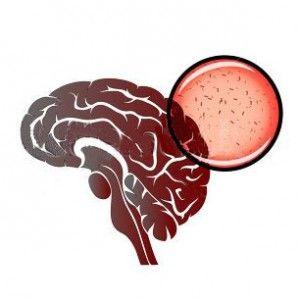 Арахноидит: причини, форми, ознаки, лікування, прогноз