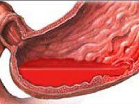 Шлунково-кишкові кровотечі