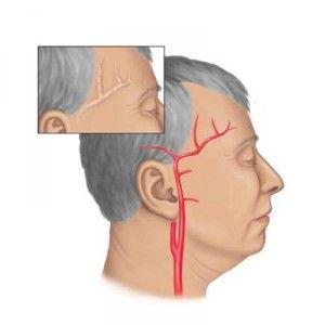 Артеріїт: причини, симптоми, лікування, прогноз, форми