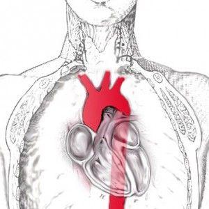 Артеріїт такаясу (неспецифічний аортоартеріїт): ознаки, діагностика, терапія