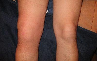 Як виглядає артрит колін