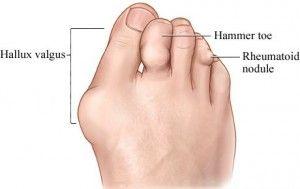 Артрит суглобів пальців ніг