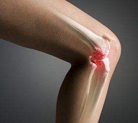 Артроз колінного суглоба його лікування, симптоми і діагностика захворювання