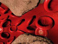 Атеросклероз брахіоцефальних (сонних) артерій