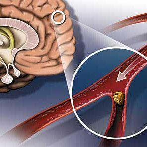 Атеросклероз судин голови: його причини, симптоми і лікування