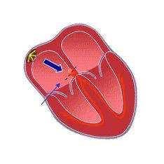Атріовентрикулярна блокада (ав) серця: причини, ступеня, симптоми, діагностика, лікування