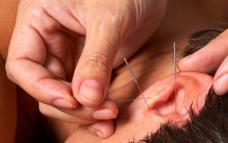 Аурикулотерапия метод східної медицини