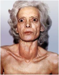Аутоімунне захворювання щитовидної залози - дифузно-токсичний зоб