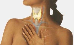 Аутоімунний гіпотиреоз, як наслідок тиреоїдиту