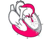 Недостатність аортального клапана і її лікування