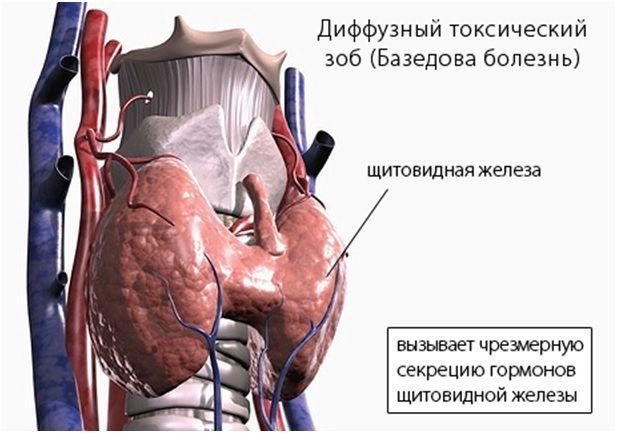 Дифузний токсичний зоб