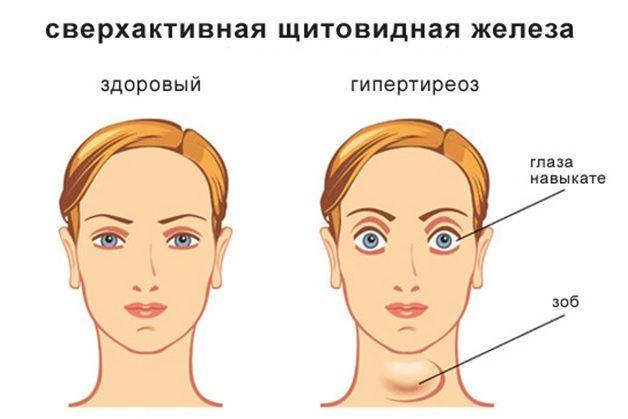 Надактивна щитовидна залоза