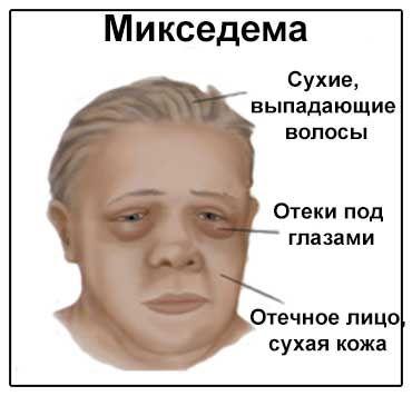 Зображення симптомів мікседеми