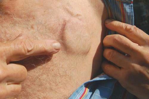 Кардіостимулятор під шкірою