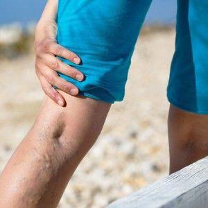 Біль у венах: причини, зв`язок з хворобами, чим небезпечна, як лікувати, профілактика