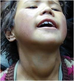 Токсичний зоб у дитини