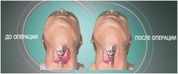 Операція на щитовидці