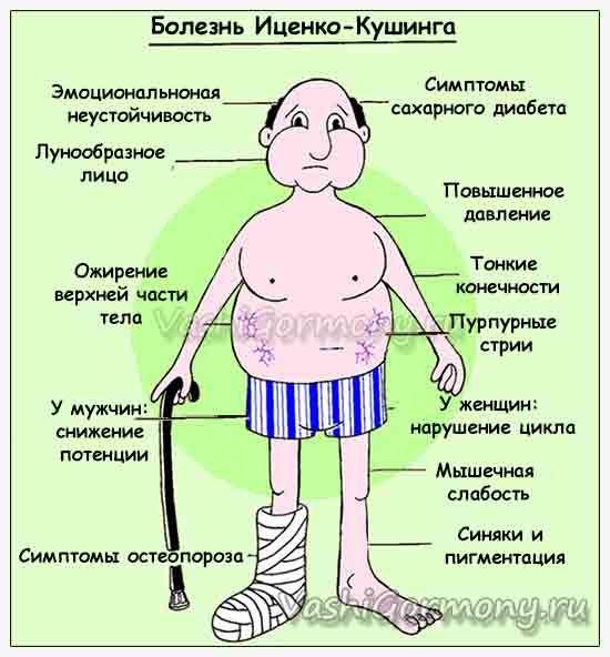 Малюнок з симптомами хвороби Іценко-Кушинга