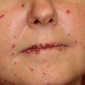 Хвороба рандом ослера: причини, симптоми, лікування, прогноз