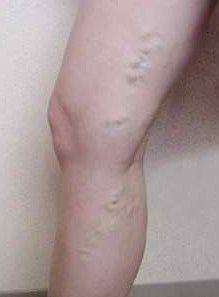 Прояви варикозу на ногах