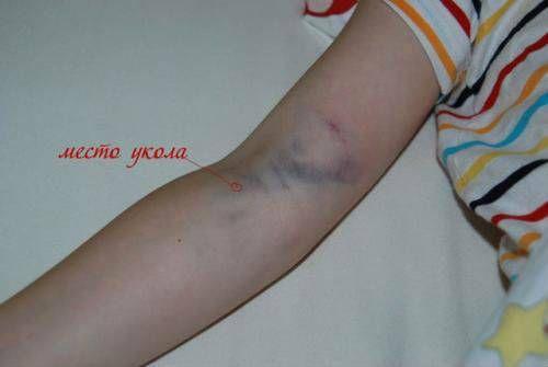 Гематома після забору крові з вени
