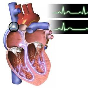 Брадикардія (низький пульс) у дітей і дорослих: види, виникнення, прояви, діагностика, лікування