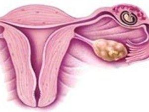 місячні при позаматкової вагітності