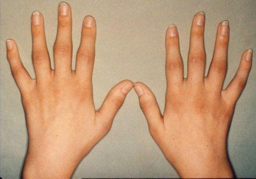 Часті причини набряклості пальців рук