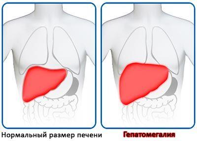 розміри печінки