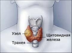 вузли на щитовидці
