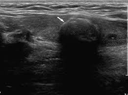 зображення узі щитовидки