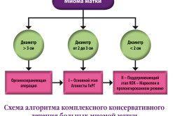 Алгоритм лікування міоми матки