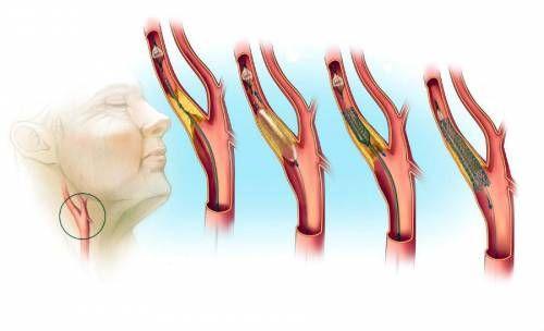 Стентування сонної артерії