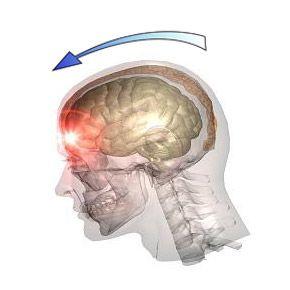 Черепно-мозкова травма (чмт), травми голови: причини, види, ознаки, допомога, лікування