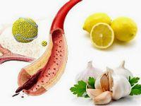 Часник і лимон для чищення судин