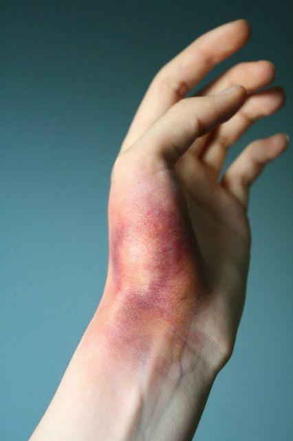 Що робити, якщо сильно вдарили руку