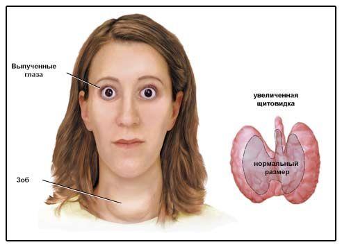 Зображення ознак дифузного токсичного зобу