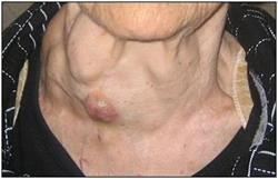 Що з себе являє гіперплазія щитовидної залози