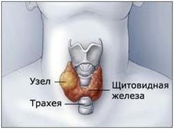 Що з себе являє вузловий зоб щитовидної залози